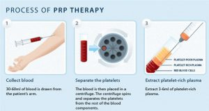 Stem Cell Treatment and PRP