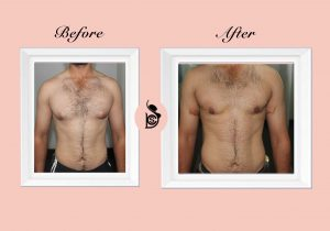 chest pack and gynecomastia