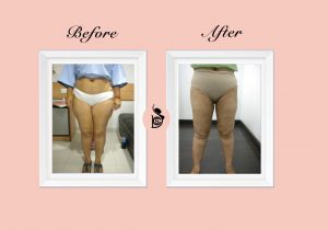 thigh vaser reshaping