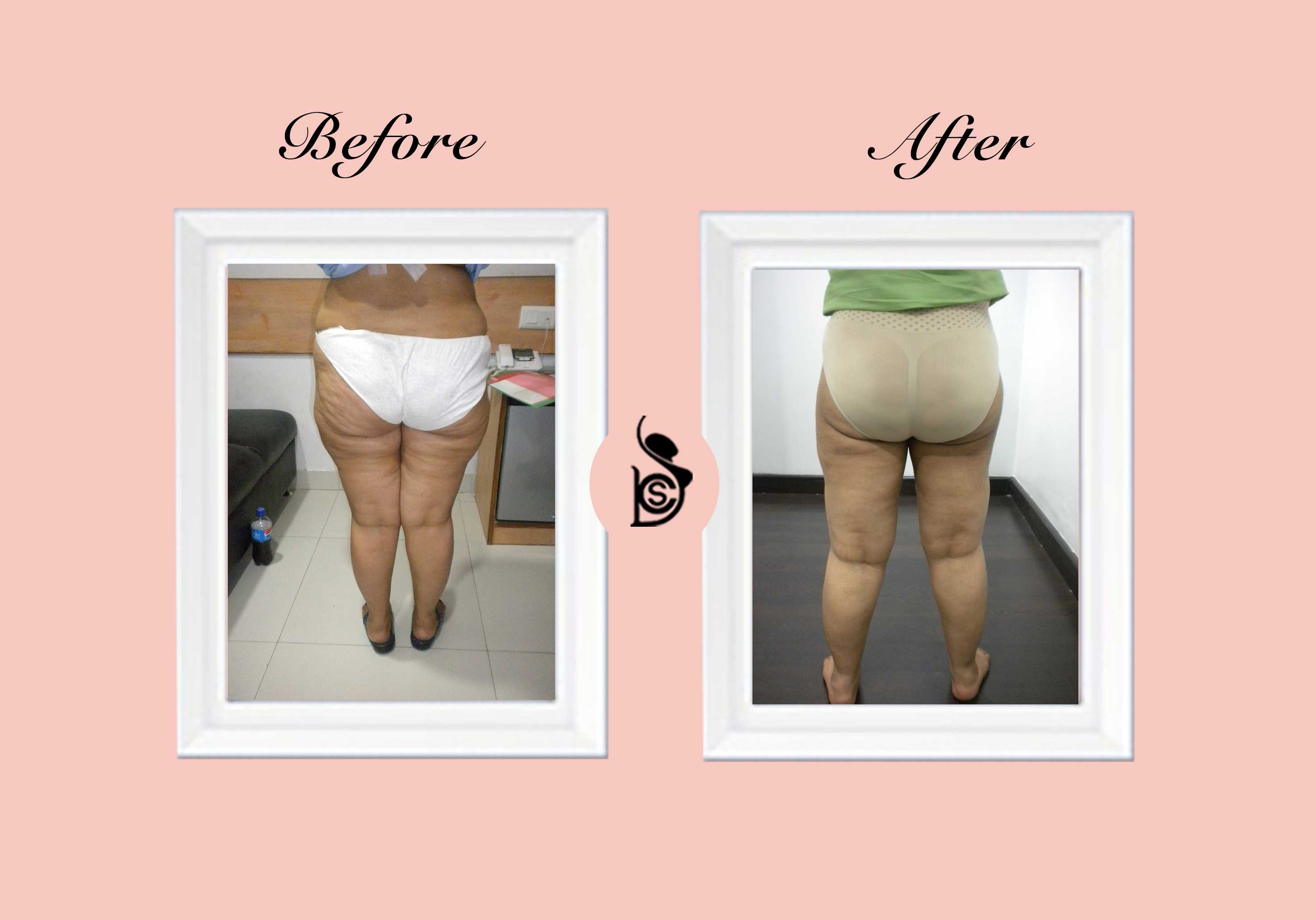 cosmetic liposuction