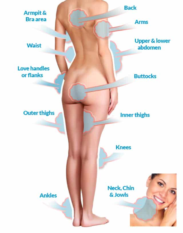 Popular Areas to Get Liposuction Done…