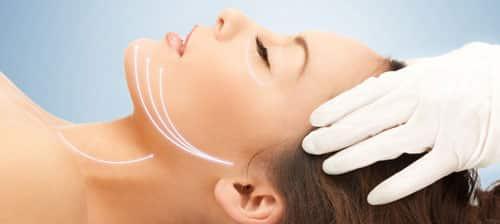 Face Lift or Rhytidoplasty