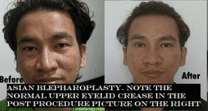 blepharoplasty eye lid surgery