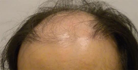Hair transplant cost