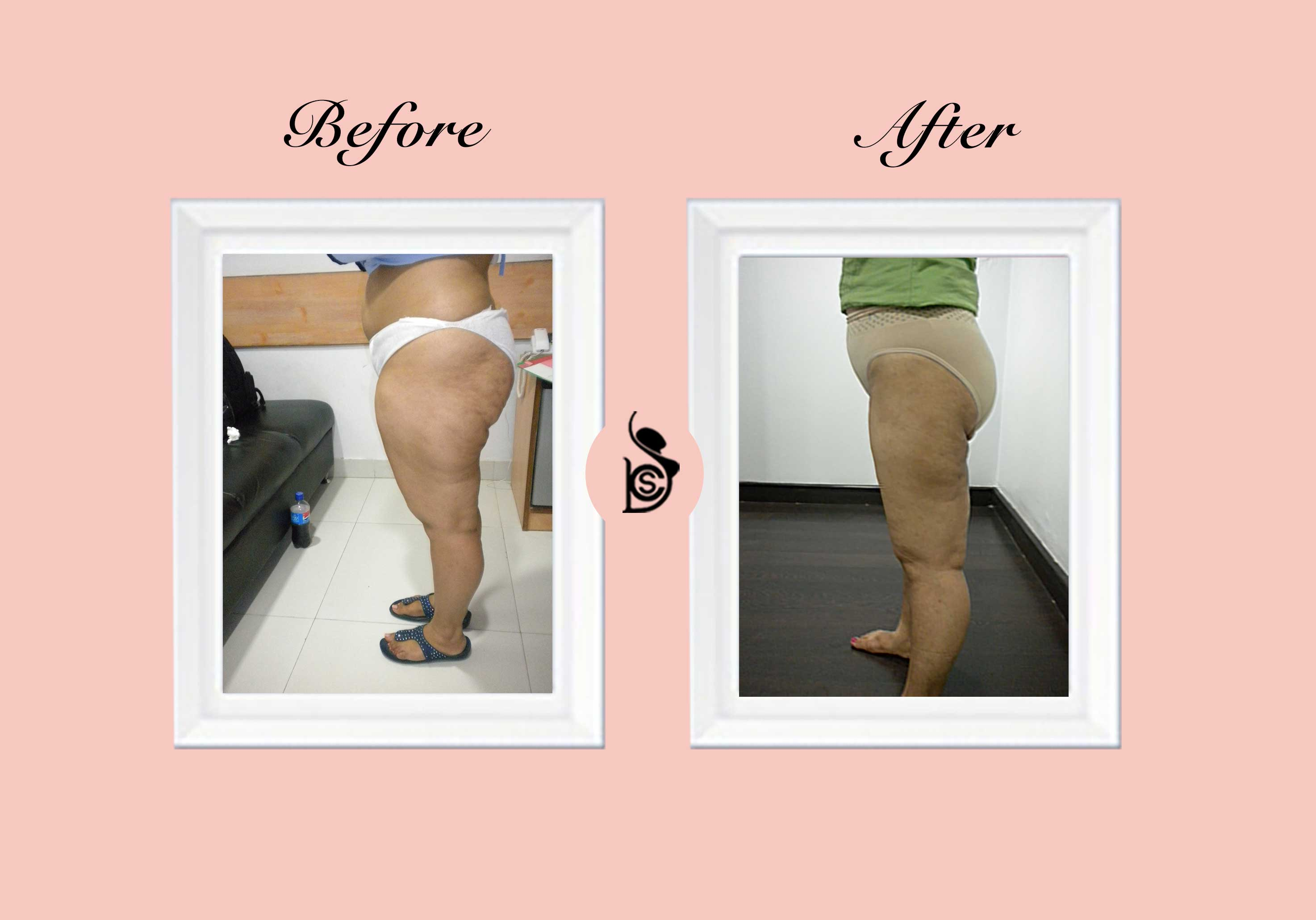 Vaser Thigh Reshaping 2