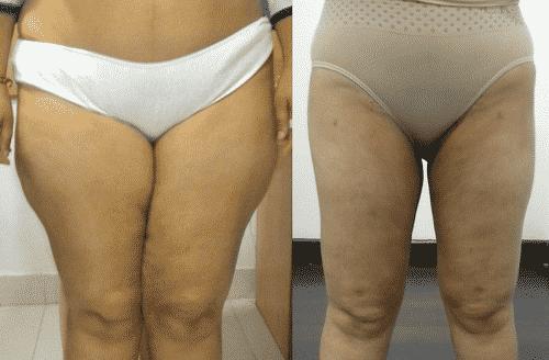 vaser thighs