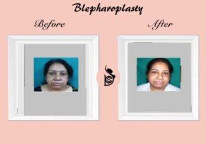 Blepheroplasty