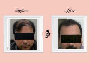 best hair transplant delhi gurgaon