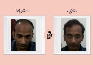 best hair transplant delhi