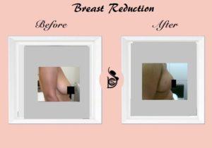 brest reduction