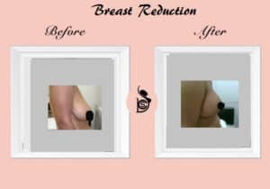 brest reduction