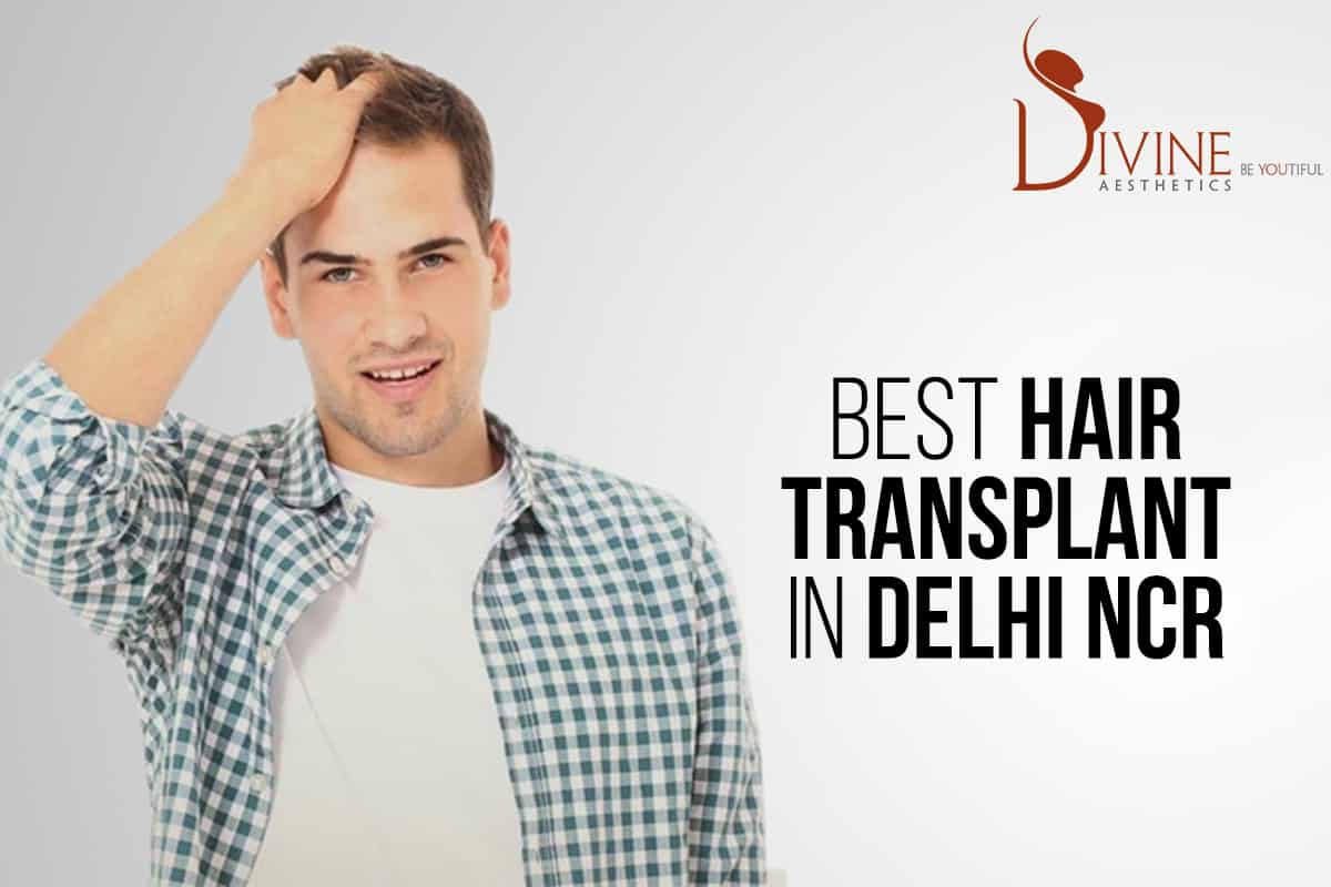 Best Hair Transplant in Delhi NCR