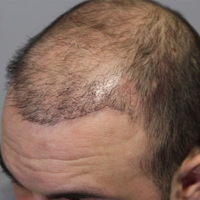 trap of cheap hair transplant