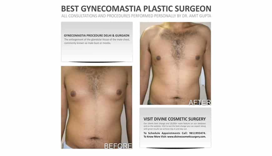Gynecomastia or Male Breast Reduction Procedure