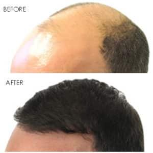 Hair Loss and Restoration