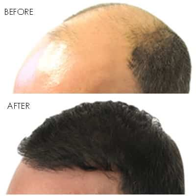 Hair Loss and Restoration