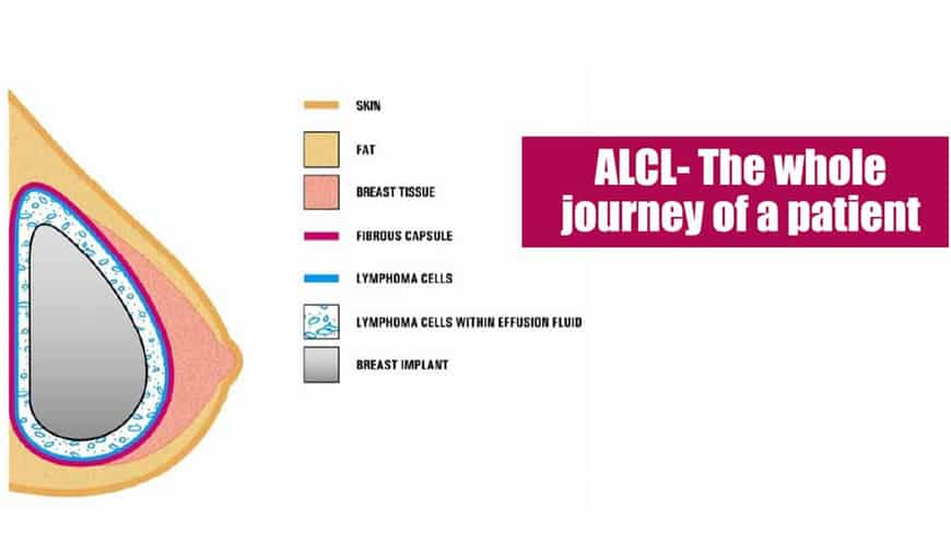 ALCL- The whole journey of a patient