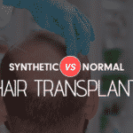Synthetic vs Normal: Difference Between Synthetic Hair Transplant and Natural Hair Transplant