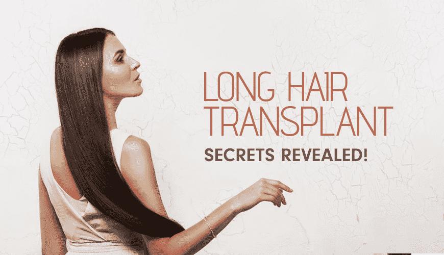 Long Hair Transplant