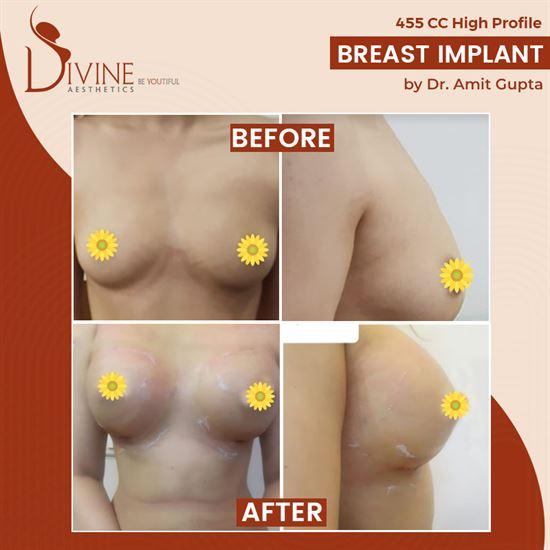 breast increase