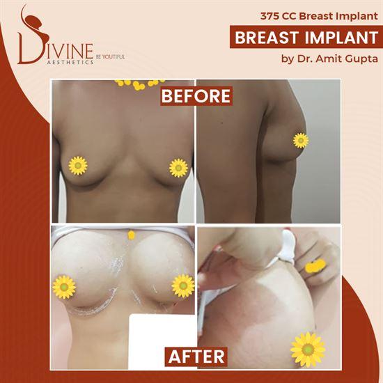 breast enlargement size