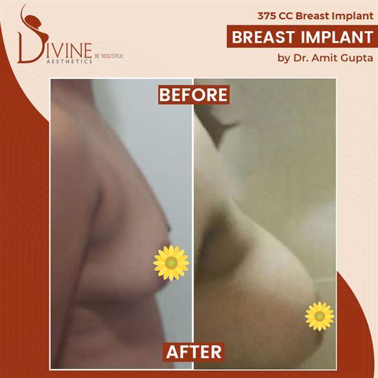 breast augmentation (boobs)