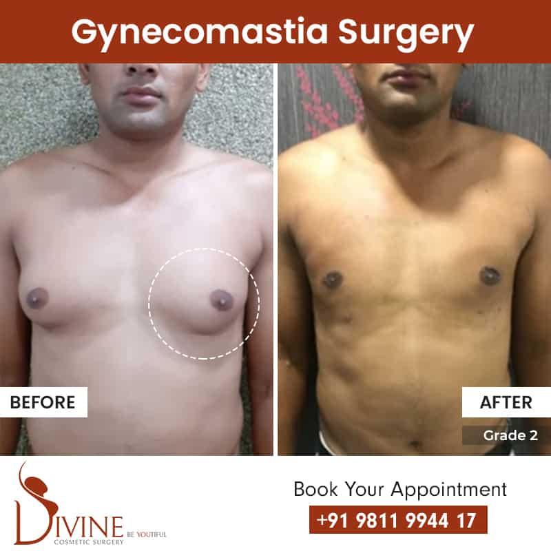 Gynecomastia surgery before and after results grade 3
