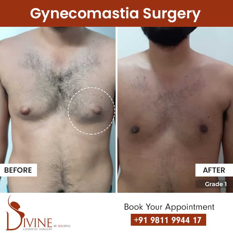 Gynecomastia surgery before and after results grade 1