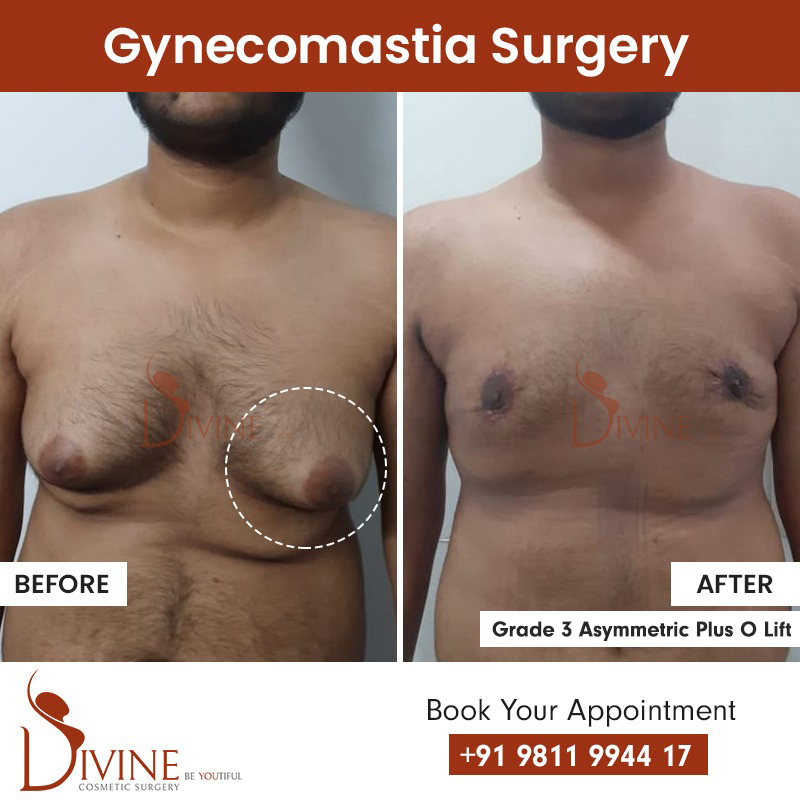 gynecomastia surgery before after result grade 3