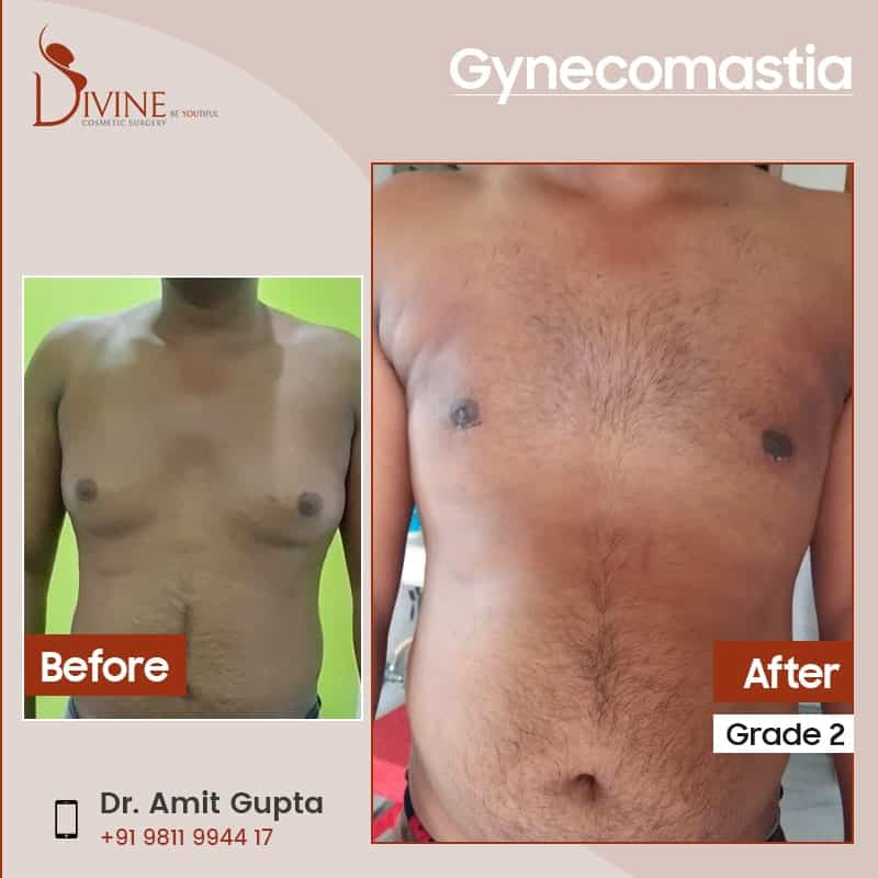 Gynecomastia surgery before and after results grade 2