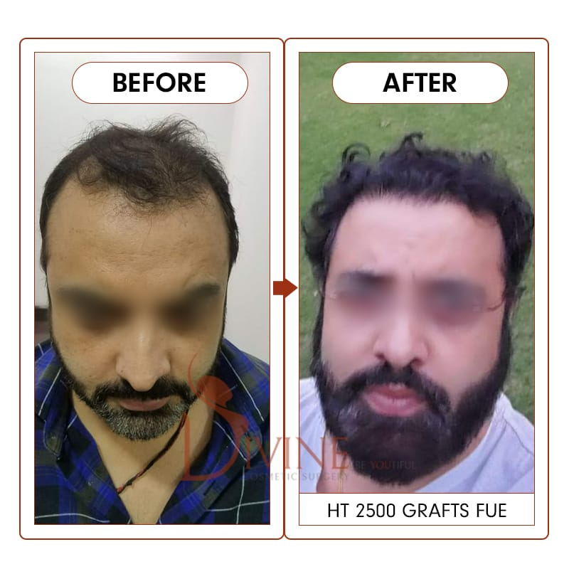 hair transplant results after 9 Months