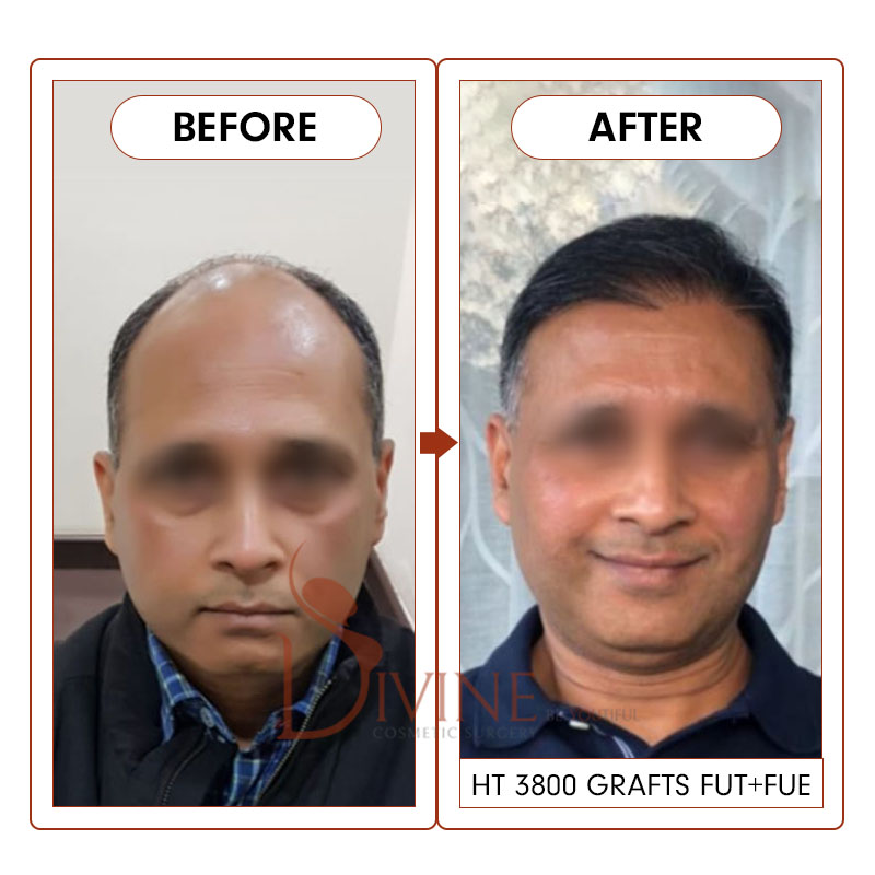 Best hair transplant before after