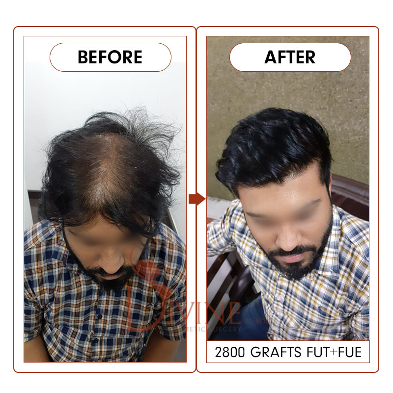 hair transplant before after picture