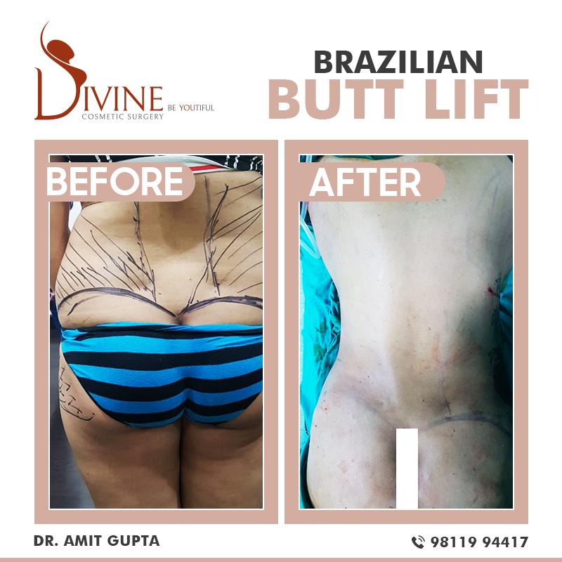 Brazilian Butt Lift (BBL)