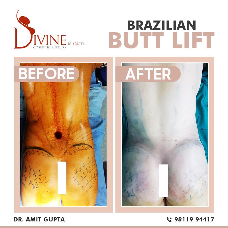 Brazilian Butt Lift-3