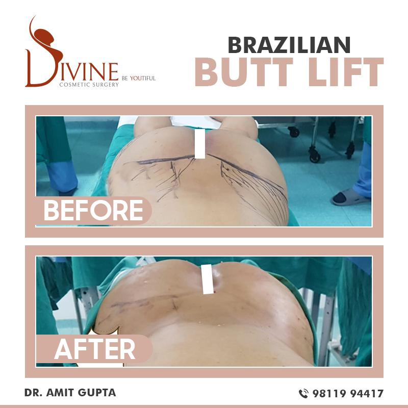 Brazilian Butt Lift -6