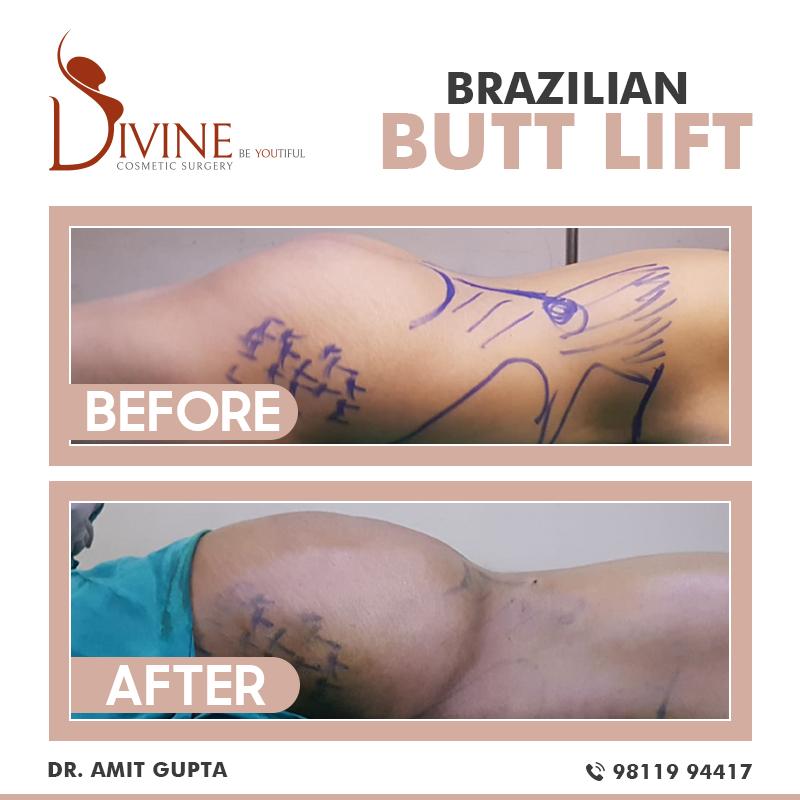 Brazilian Butt Lift -7