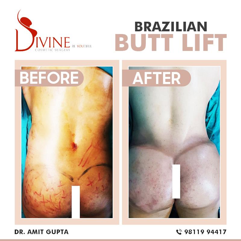Brazilian Butt Lift-2