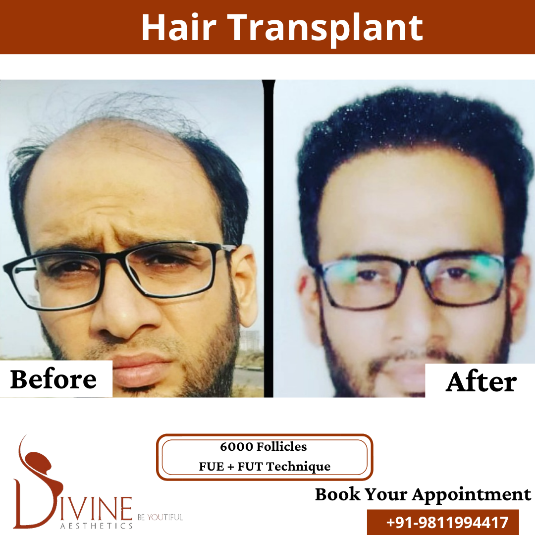 Hair Transplant before & after results surgery done by Dr. Amit Gupta with 6000 follicles FUT+ FUE techniques.