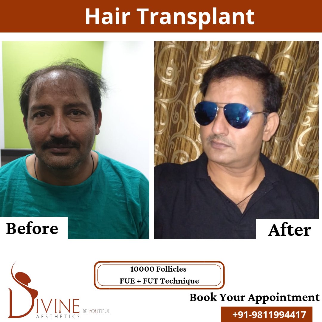 Hair Transplant before & after results surgery done by Dr. Amit Gupta with 10000 follicles FUT+FUE techniques.