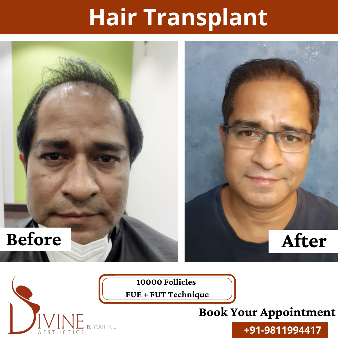 Hair Transplant before & after results surgery done by Dr. Amit Gupta with 10000 follicles FUT+ FUE techniques.