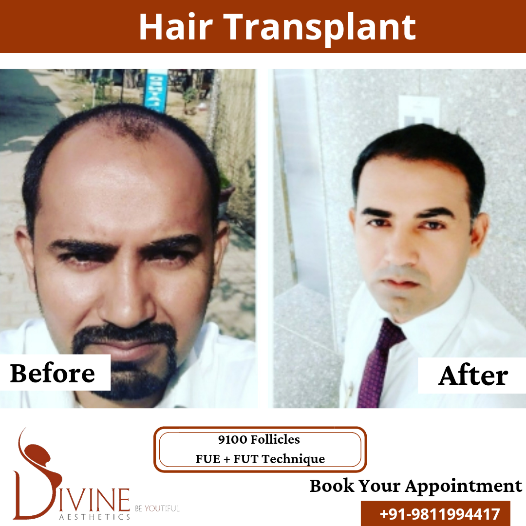 Hair Transplant before & after results surgery done by Dr. Amit Gupta with 9100 follicles FUT+FUE techniques.