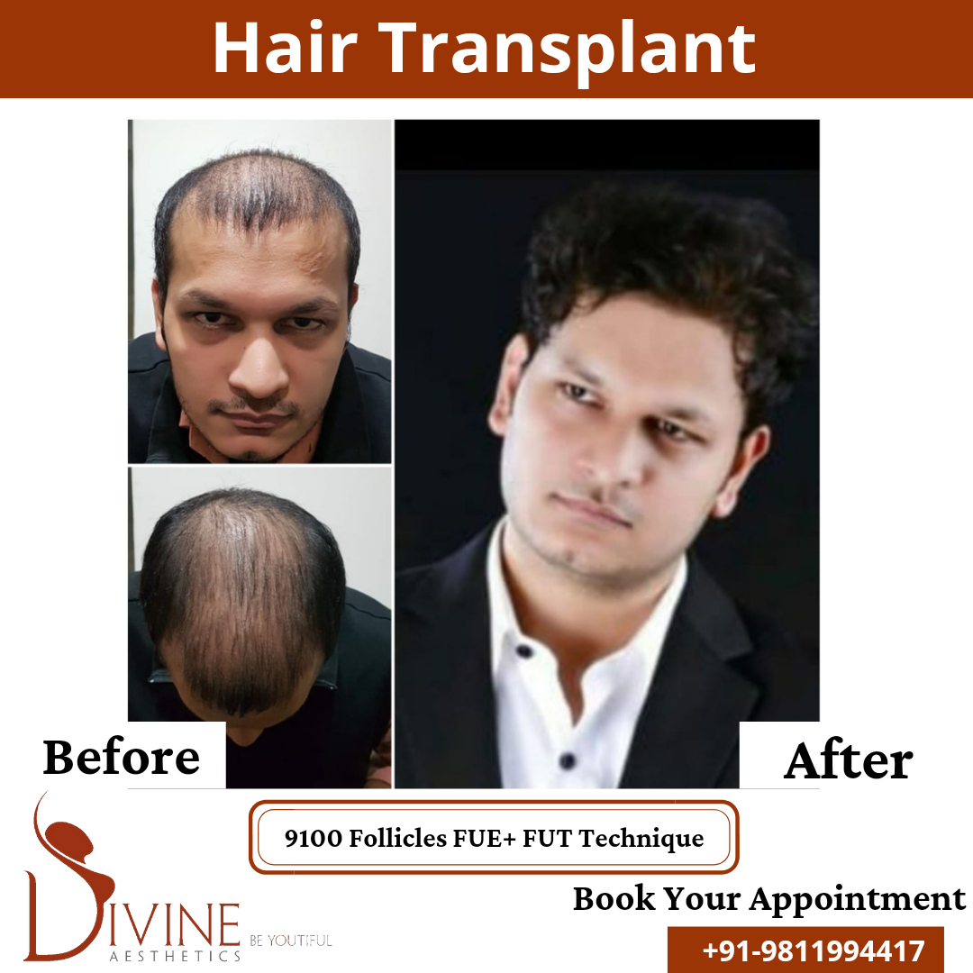 Hair Transplant before & after results surgery done by Dr. Amit Gupta with 9100 follicles FUT+ FUE techniques.