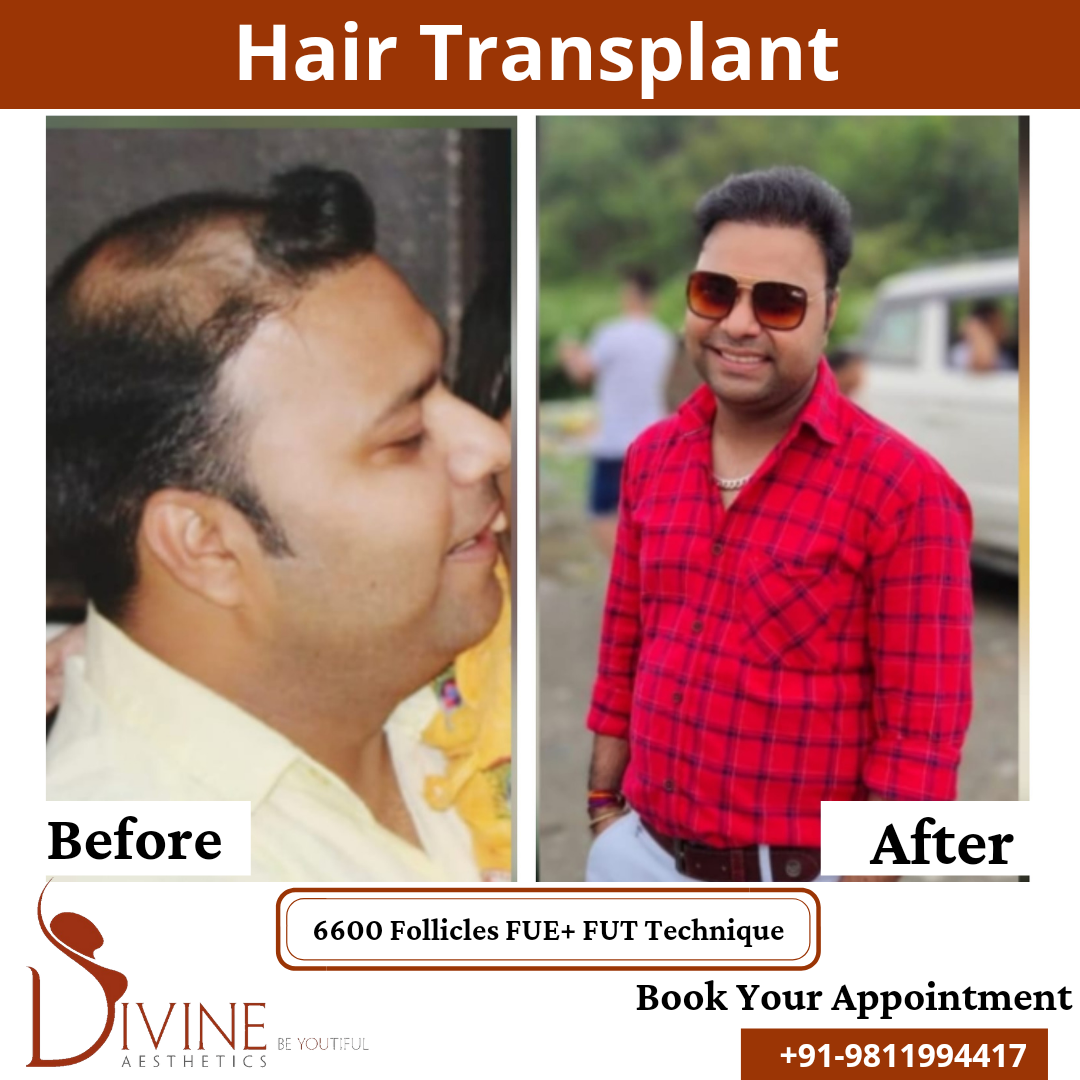 Hair Transplant before & after results surgery done by Dr. Amit Gupta with 6600 follicles FUT+ FUE techniques.
