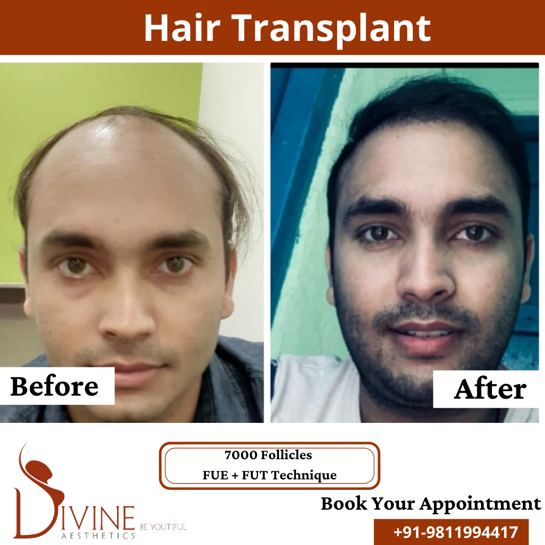 Hair Transplant before & after results surgery done by Dr. Amit Gupta with 7000 follicles FUT+ FUE techniques.
