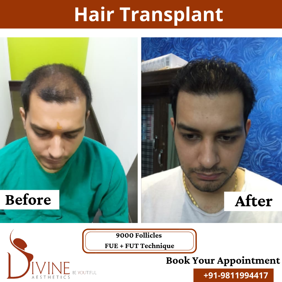 Hair Transplant before & after results surgery done by Dr. Amit Gupta with 9000 follicles FUT+ FUE techniques.