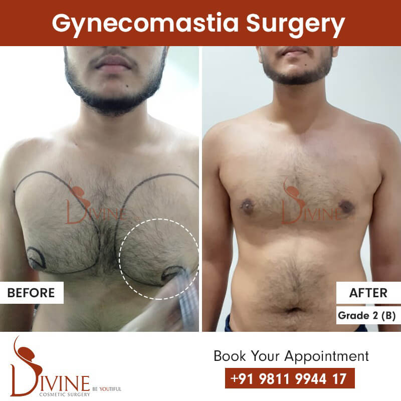 best gynecomastia surgery in delhi