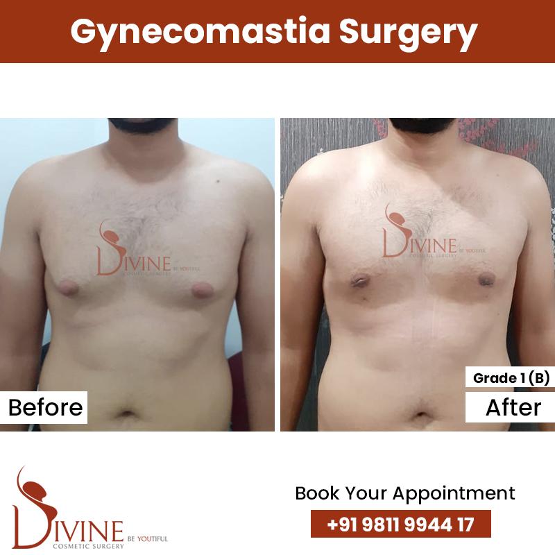 gynacomestia 1