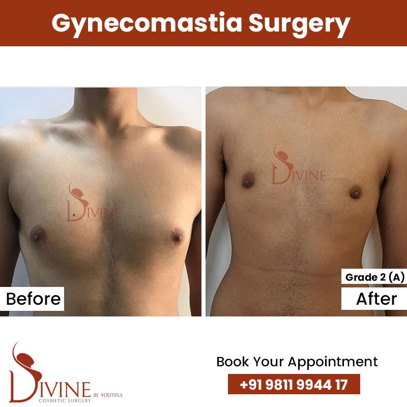 gynacomestia 9