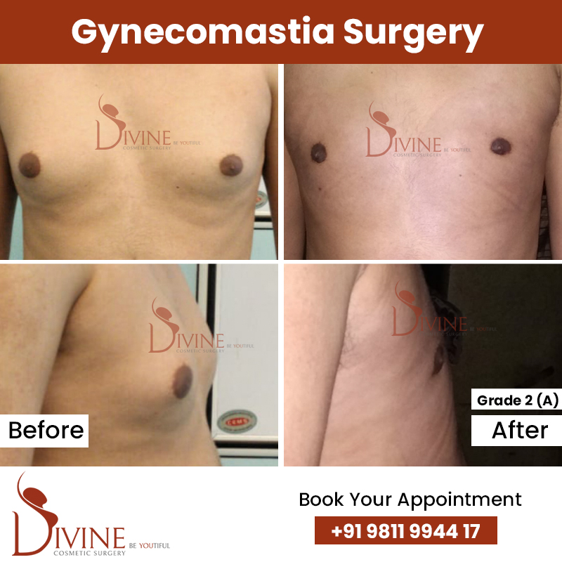 gynacomestia 11